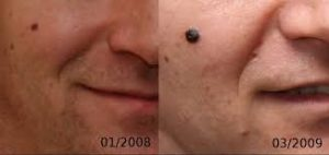 Bőrrák tünetek